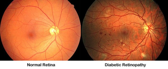 Image result for diabetes eye