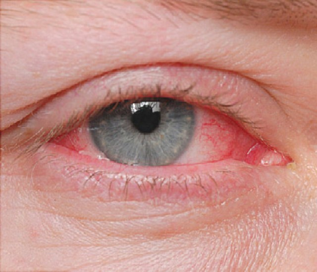 Image result for pink eye info