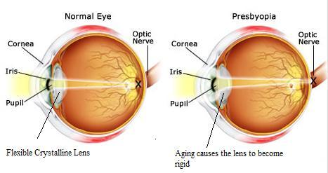 presbyopia-test1.jpg