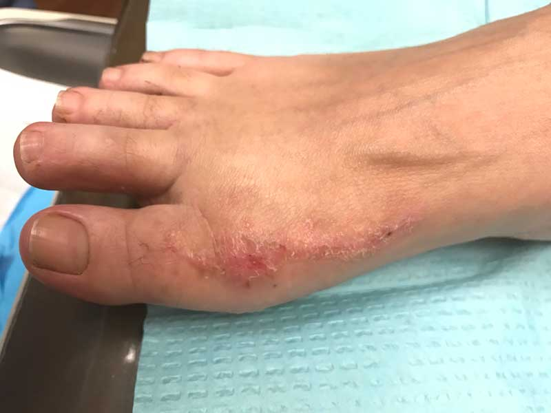 Scar from Bunion Surgery
