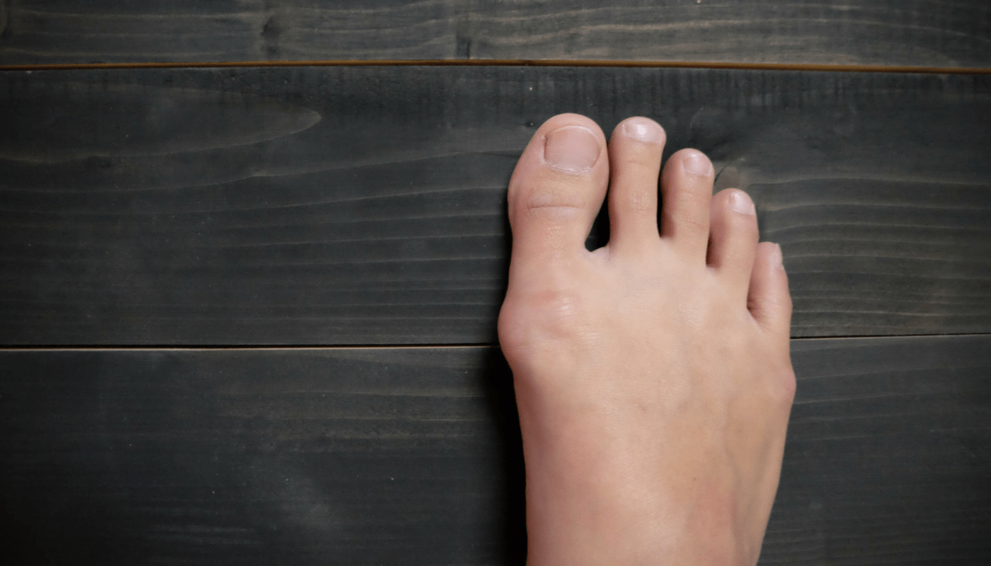 minimally invasive Surgery for bunions