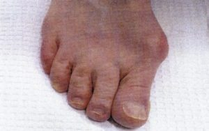 Before bunion removal surgery