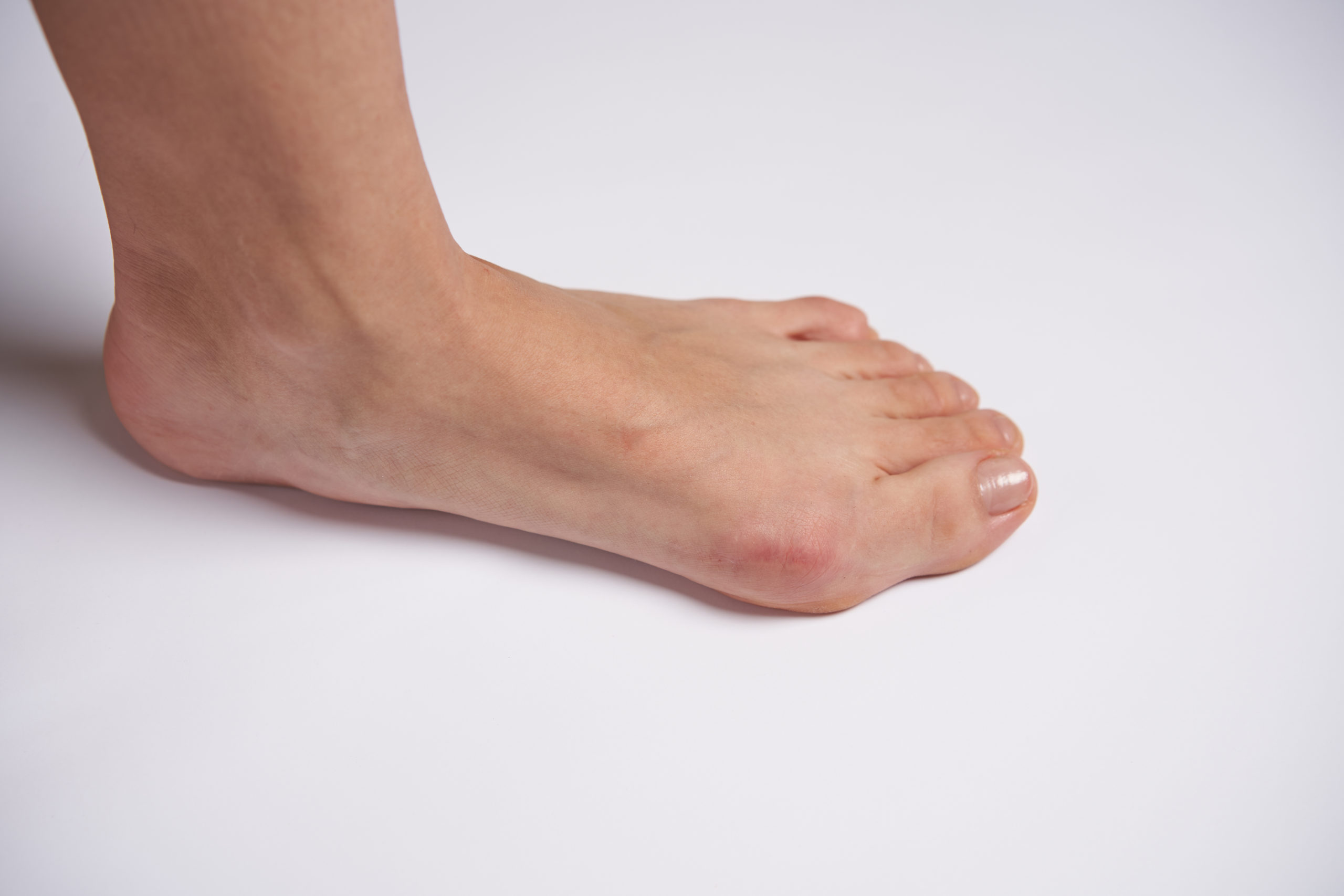 Bunion and hammertoe pain