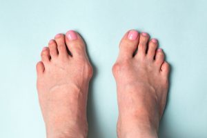 Bunion Surgery Before And After Northwest Surgery Center