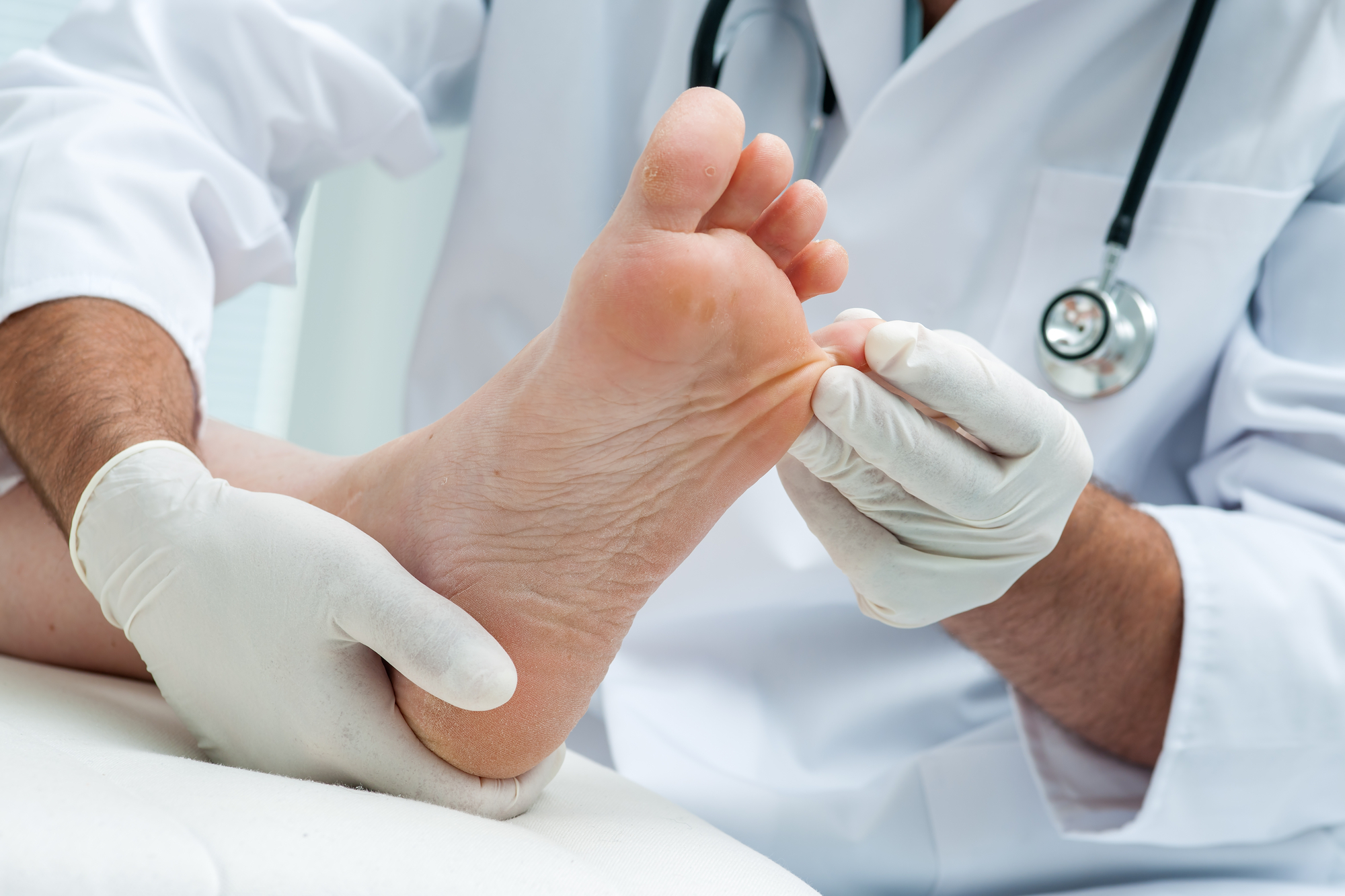 What is pain after bunion surgery like?