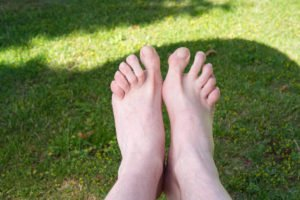 5 signs of a Hammertoe