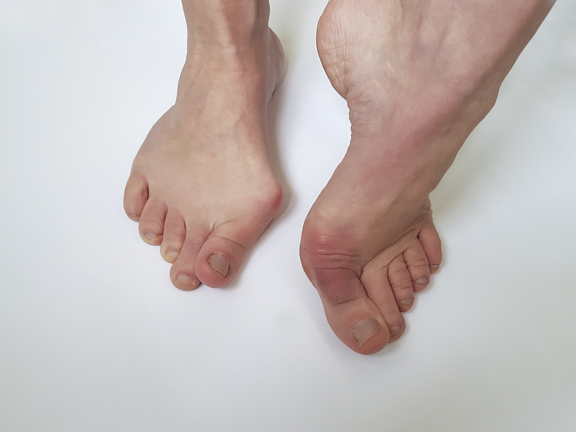 bunions are untreated can cause other problems