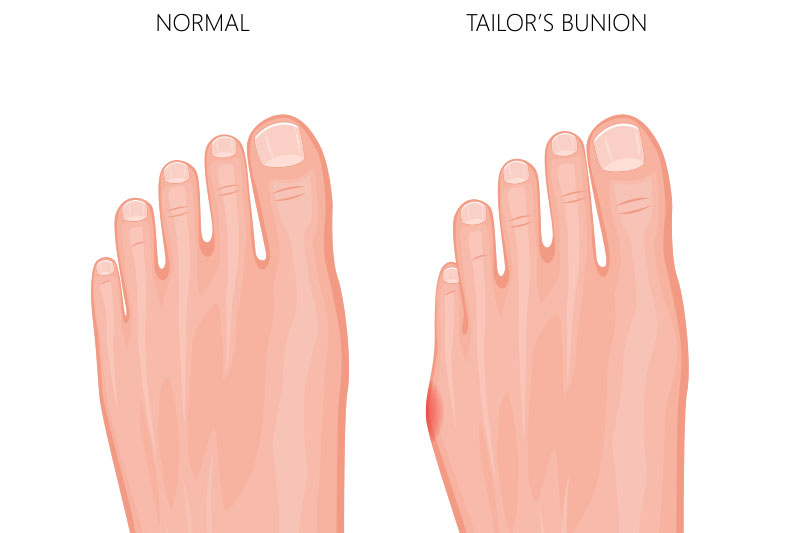 tailor's bunions
