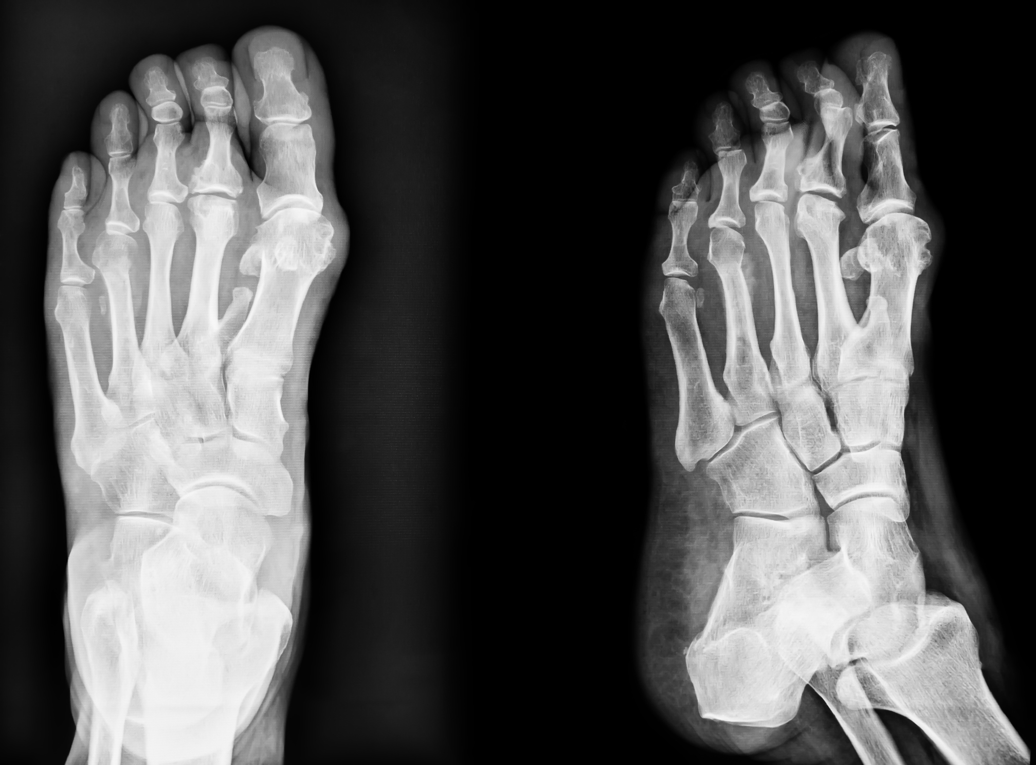 x-ray of hammertoe
