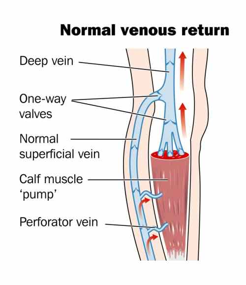 small resolution of the superficial system of veins are present just under the skin it is the visible bulging of these veins that are called varicose veins