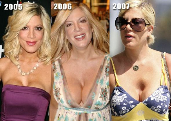 Plastic Surgery Gone Wrong: 11 Worst Plastic Surgery Disasters