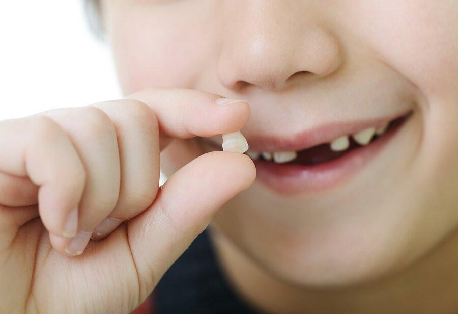 ¿Qué alimentos destruyen los dientes?