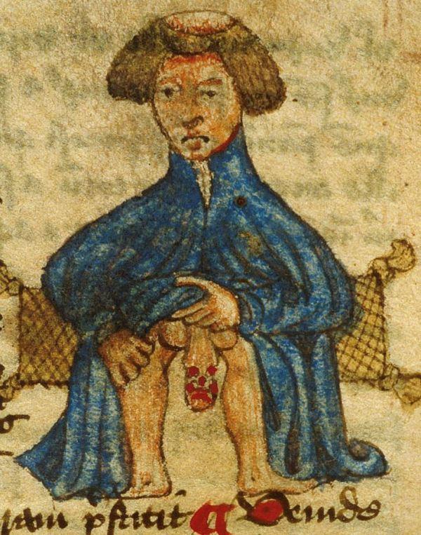 Clerk with diseased genitals Arderne