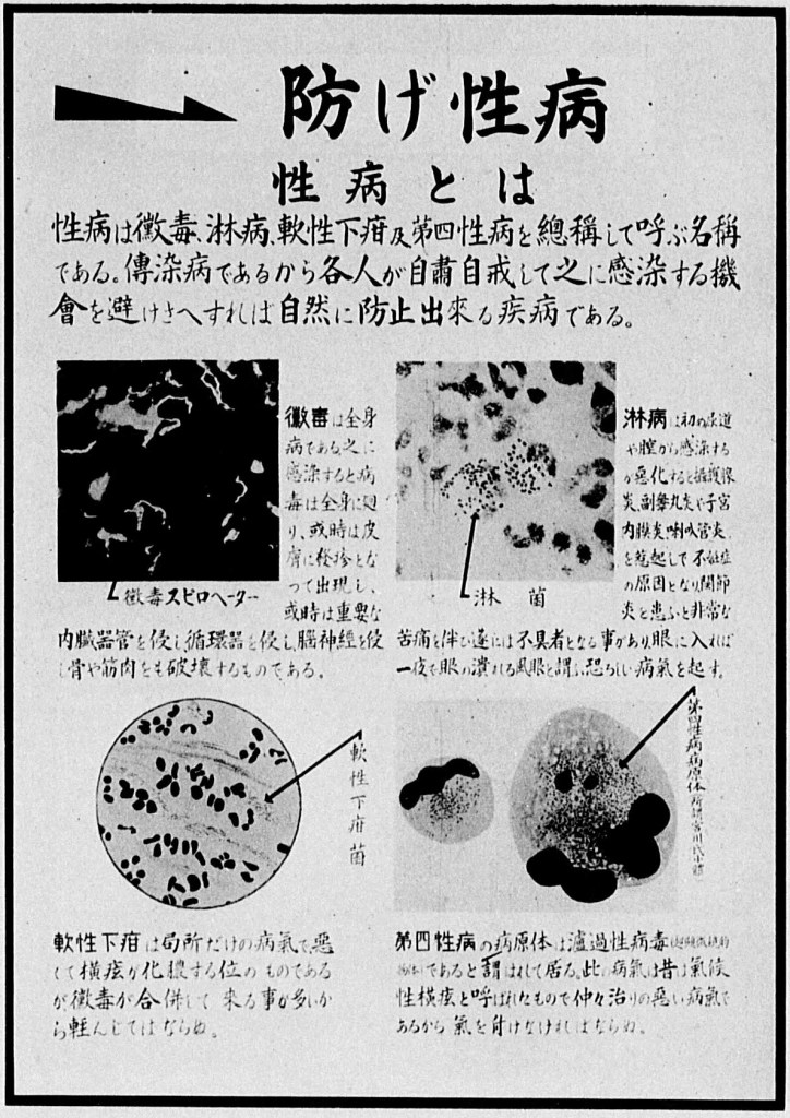 "The government identified four sexually-transmitted diseases as the most common forms of VD: syphilis, gonorrhea, chancroid, and lymphogranuloma venereum (LGV). ""What Is Venereal Disease?"" in Ministry of Health, Department of Disease Prevention, Kokumin yūsei zukai (An Illustrative Guide of National Eugenics) (Tokyo: Kokumin yūsei renmei, 1941)."