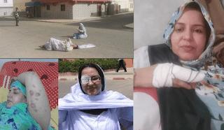 La represión marroquí se ceba con Sultana Jaya y su familia: 3 agresiones en 67 días de arresto domiciliario impuesto