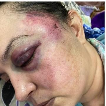 HRW denuncia el acoso y la vigilancia policial impuestos a la casa de la activista saharaui Sultana Jaya | Sahara Press Service