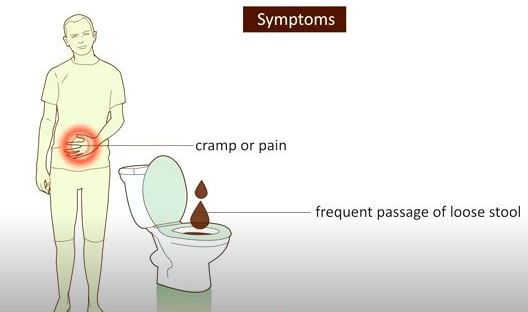 Read more about the article Diarrhea: Symptoms, Causes, Diagnosis, Prevention-NotesMed