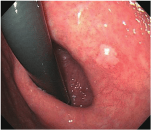 What Is Gastric Lavage:What Is The Gastric Lavage Procedure