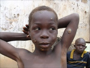 What Is Yaws Diseases;Diagnosis, Treatment And Prevention