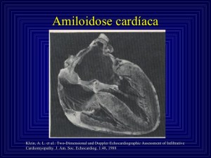 What Is Cardiac Amyloidosis;What Does It Do?