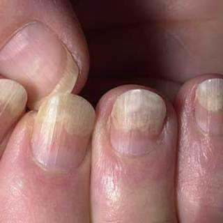 What Is Nail psoriasis;Treatment,Causes And Prevention