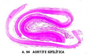 What Is Syphilitic Aortitis;Prognosis And Treatment