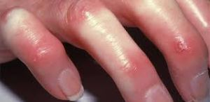 What Is Scleroderma;Pathology,Diagnosis And Treatment