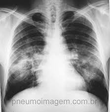 What Is Pulmonary Edema;Symptoms And Causes
