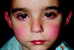 What Is Reye's Syndrome;Facts About Its Diagnosis And Treatment