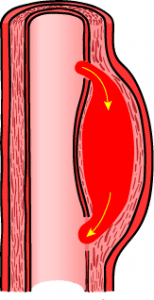 What Is Aortic Dissection;Symptoms,Diagnosis And Types