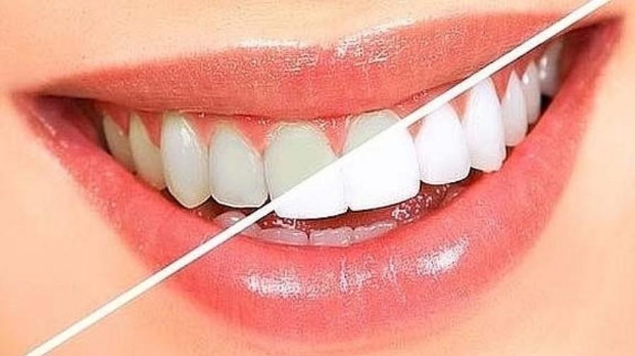Deja atrás los dientes amarillos y regrésales su esplendor
