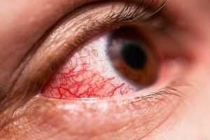 Ministerio de Salud considera conjuntivitis se vuelve epidemia