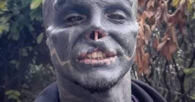 Francês que tenta virar 'alienígena preto' remove parte do lábio superior