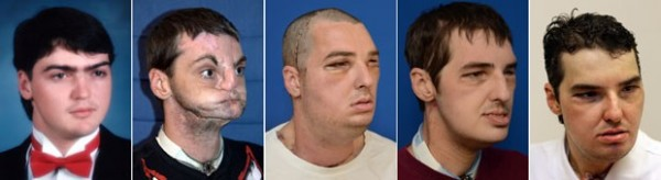 Imagem mostra Norris antes e depois do acidente, e a evolução após o trasplante de rosto