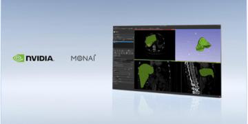 NVIDIA lanza el framework de imágenes MONAI y la Inception Alliance junto a GE Healthcare y Nuance 7