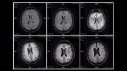 cerebro con cocaina