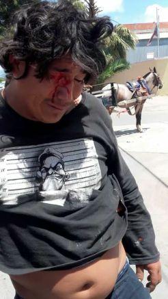 Gregorio Torres, sufrió la trágica pérdida de un ojo producto de un impacto de bala de goma.