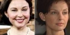 125988415c937d746225836d7c6a64ea - Ashley Judd, deformada tras una cirugía