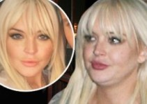 507172a02821b85089d3dcb57ba79989 - Lindsay Lohan se arruinó la cara con rellenos de grasa