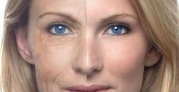 1d6b94742882c259ef2cfdb5dd640a87 - ¿Cómo hacer más lento el envejecimiento sin bisturí?
