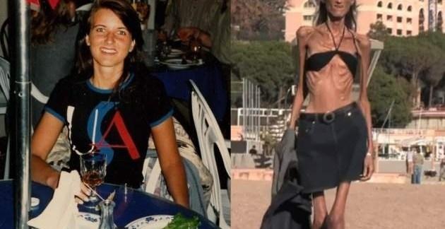 911d43c81faf70f5d193b0df7ffc5aa6 - La dura vida de la mujer más anoréxica del mundo