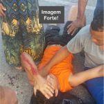 ACIDENTE – Motociclista tem parte da perna dilacerada após acidente em Iguaba Grande