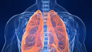 Realizan trasplante de pulmones a hombre que superó el Covid-19