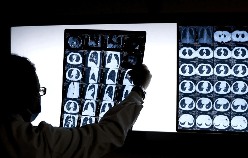 Estudios médicos para revelar presencia de cáncer. (AP, archivo)