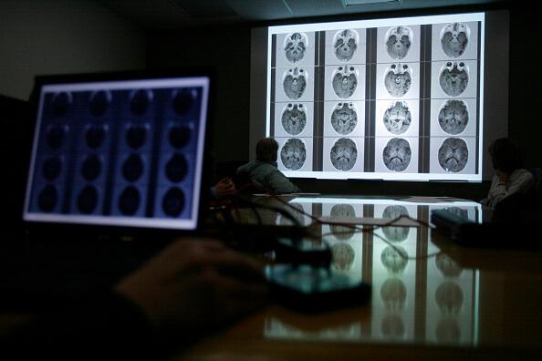 50 millones de personas padecen epilepsia en todo el mundo. (Getty images, archivo)