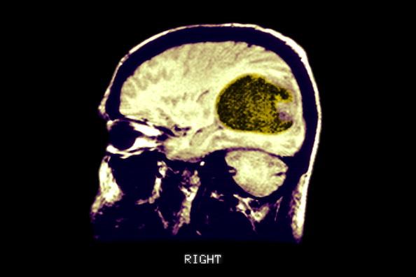 Radiografía de un tumor dentro del cerebro; científicos descubren nuevas causas genéticas del cáncer cerebral (Getty Images, archivo)
