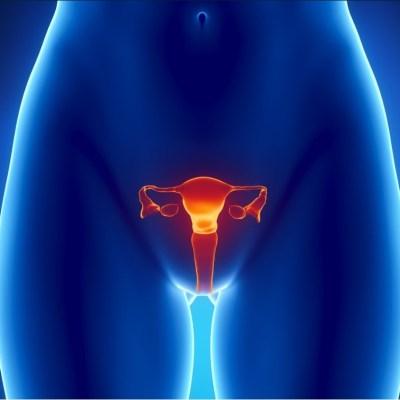 Descubren 12 variantes genéticas del cáncer de ovarios