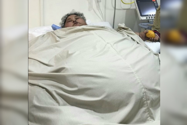La egipcia Eman Ahmed Abd El Aty sufre de edemas linfáticos severos, retención de líquido, diabetes, hipertensión e hipotiroidismo, padece de gota y problemas graves en los pulmones (Twitter @thekavitasharma)