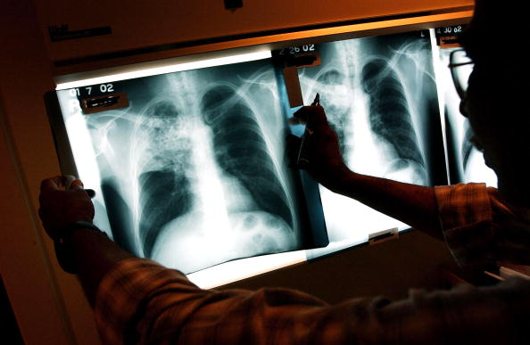 Especialistas examinan una lámina de un paciente infectado con tuberculosis.(Getty Images, archivo)