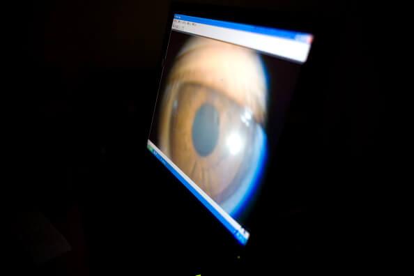 Trasplante, Queratocono, Cornea, paciente, oftalmología, enfermedad, ojos,